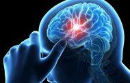 ტვინის იმპლანტით მეცნიერებმა მეხსიერება გააძლიერეს