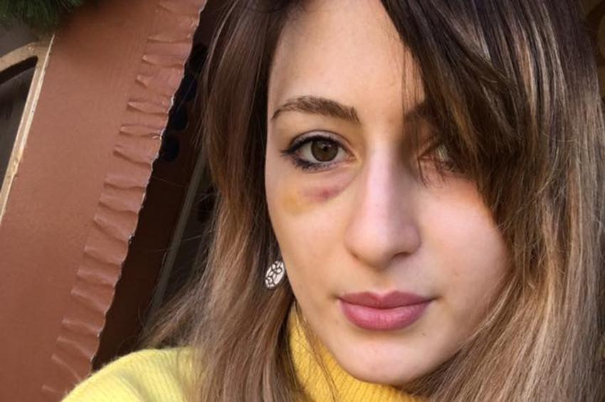 ოჯახური ძალადობის მსხვერპლი დეა გოშხეთელიანი სახელმწიფოს მისი უსაფრთხოების დაცვას სთხოვს